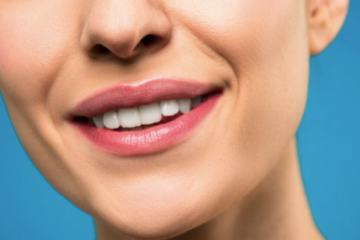 Albirea dinţilor la cabinetul dentar – singură şi cea mai eficientă metodă de cosmetizare a danturii
